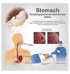 Egd stomach vector
