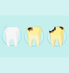 Kind of teeth clean caries flat style vector