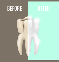 teeth whitening before and after vector image