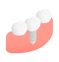 Tooth Implant icon isometric 3d style vector image