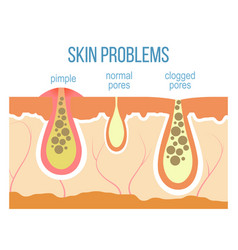 Skin pores close up vector