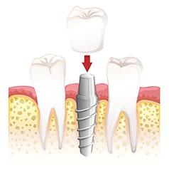Dental crown procedure vector