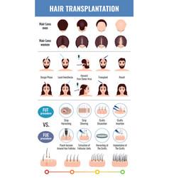 baldness hair transplantation set vector image