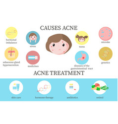 Acne causes and treatment diagram flat vector