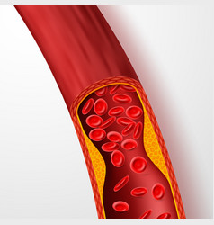 Blocked blood vessel artery with cholesterol vector