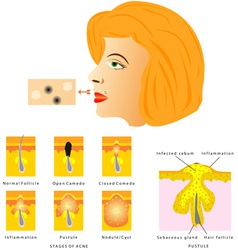 Formation of skin acne vector image vector image