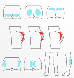 Location buttocks and calf implants vector image