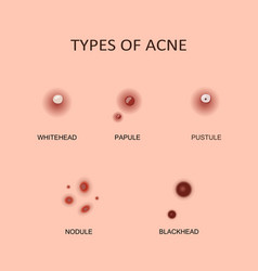 types acne and pimples vector image