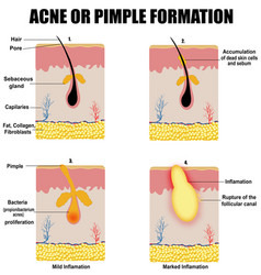 Formation skin acne or pimple vector