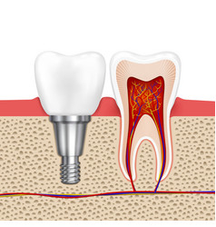 Healthy teeth and dental implant vector image