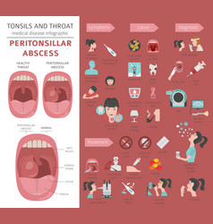 Tonsils and throat diseases peritonsillar abscess vector