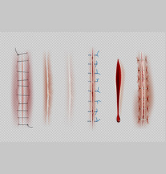 Surgical sutures medical closeup stitches scars vector