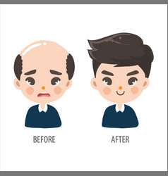 Bald man without confidence and long hair men vector