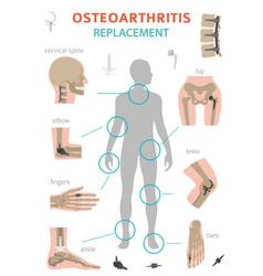 Arthritis osteoarthritis medical infographic vector