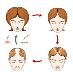 Female hair loss and transplantation icons vector