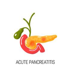 Acute pancreatitis concept vector