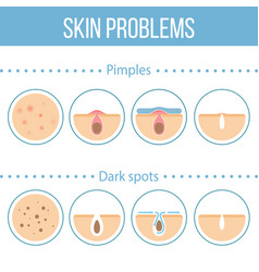Skin problems icons vector