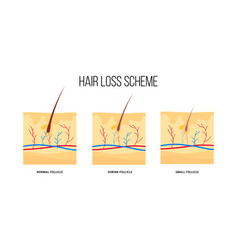 human hair loss scheme flat style vector image