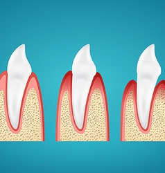 Stages progress disease gum on human canine vector image vector image