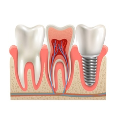 Dental Implants Anatomy Closeup Model vector