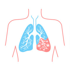 icon of lung disease pneumonia vector image vector image