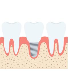 medical denture human teeth dentist implant in vector image