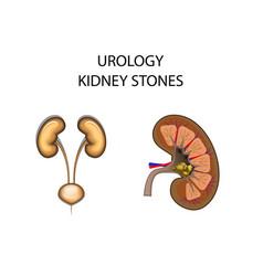 Kidney stones vector