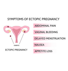 Symptoms ectopic pregnancy infographics vector