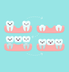 dental bridge setting tooth stomatology vector image