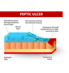 Helicobacter pylori and ulcers disease vector image vector image