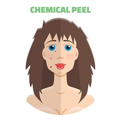 Cosmetic peeling Chemical peeling before after vector