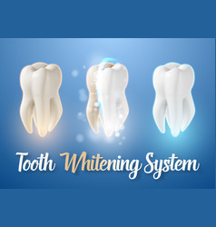 teeth cleaning process 3d realistic teeth vector image vector image