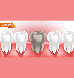 White healthy and clean human teeth in gum vector