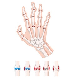 Rheumatoid arthritis diagram on white vector image vector image