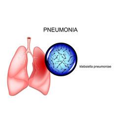 pneumonia causative agent - klebsiella vector image