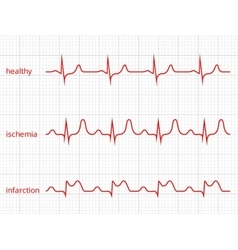 Heart cardiogram charts set Healthy heart vector image