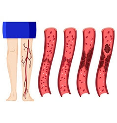 Blood clot in human legs vector image