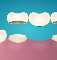 Tooth enamel vector