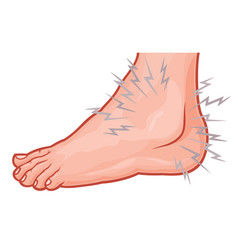 ankle sprain vector image