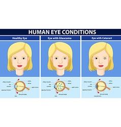 Diagram showing human eye conditions vector image vector image