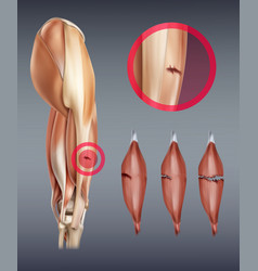 Leg muscle injury with vector