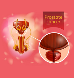 Prostate cancer realistic anatomical scheme vector