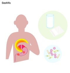 Stomach Disorder or Gastritis with Treatment vector