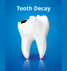 Tooth decay dental care concept realistic design vector