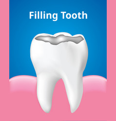Tooth filling with gum dental care concept vector