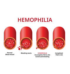 Hemophilia damaged blood vessel haemophilia vector