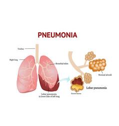 Pneumonia lobar pneumonia isolated on white vector