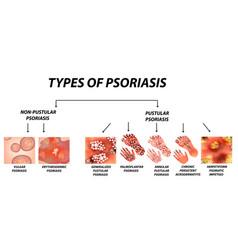 Types of psoriasis pustular and not pustular vector