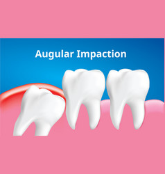 Wisdom tooth angular or mesial impaction with vector