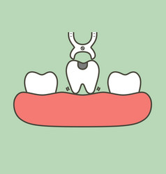 Tooth extraction with dental tools vector